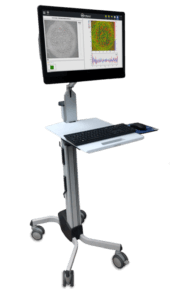 4D InSpec Surface Defect Gauge Cart with Monitor